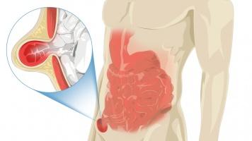 Penyakit Hernia, Tidak Berbahaya Namun Jangan Anggap Sepele image